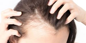 6 How Hair Scalp Tattooing Can Give Women Back Their Confidence